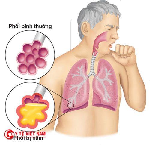 Phương pháp điều trị bệnh nấm phổi tùy thuộc vào giai đoạn bệnh
