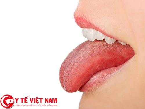 Bệnh ung thư lưỡi
