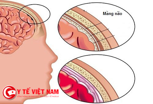 Triệu chứng bệnh viêm mô não