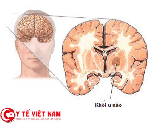 Hình ảnh bệnh ung thư não