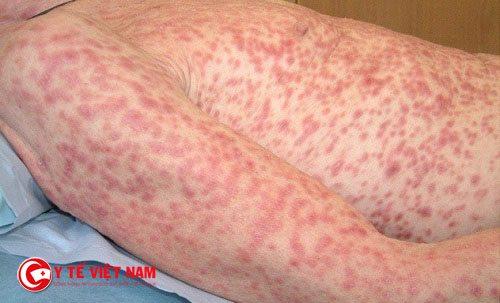 Các nốt ban mọc đối xứng nhau khắp cơ thể người bệnh