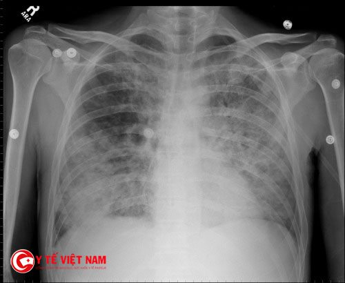 Phương pháp điều trị bệnh nấm phổi tùy thuộc vào tình trạng bệnh