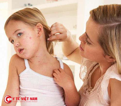 Mẹ cần có những hiểu biết về căn bệnh này để hạn chế những tác hại đến bé