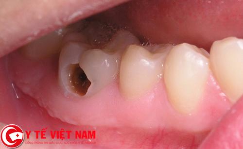 Do mắc phải bệnh răng miệng