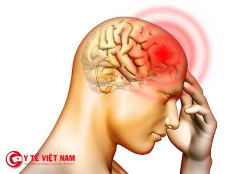 Bệnh thiếu mãu não là nguyên nhân gây ra chứng đột quỵ