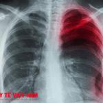 Bệnh tràn dịch màng phổi nguy hiểm