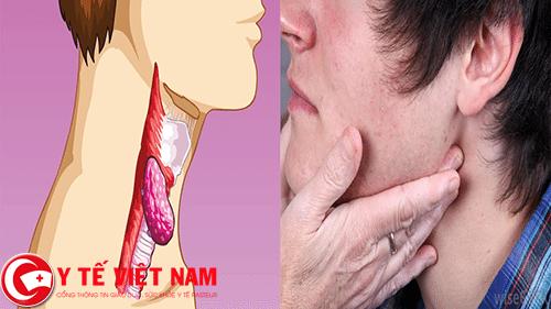 Bệnh ung thư hạch ở nam giới