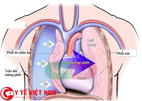 Bệnh xẹp phổi nguy hiểm
