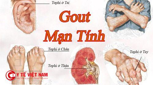 Bệnh gout mạn tính là một trong những biến chứng của bệnh gout