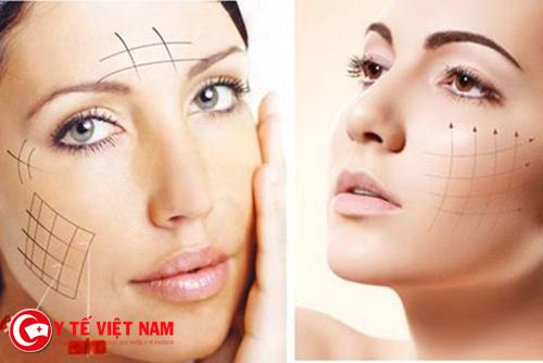 Căng da mặt bằng chỉ kích thích tại tạo da và collagen