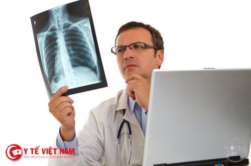 Chụp X-quang phổi thẳng là phương pháp chuẩn đoán chính xác nhất