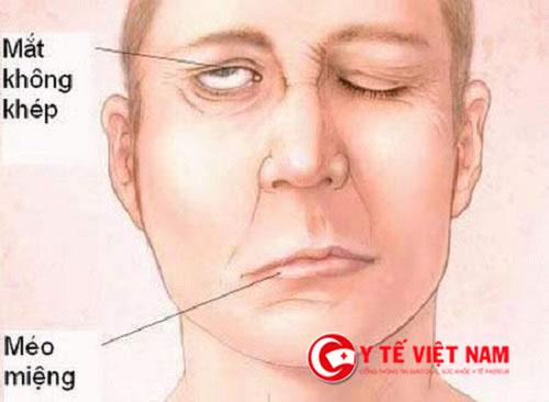 5 dấu hiệu nhận biết bệnh đột quỵ không thể bỏ qua