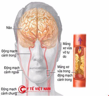 Cần phải nhận biết bệnh thiếu máu não sớm để kịp thời điều trị