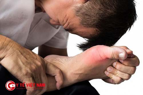 Bệnh gout đa số thường gặp ở nam giới từ 33 đến 55