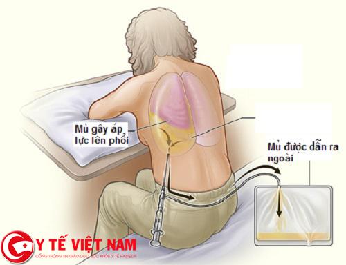 điều trị bệnh viêm màng phổi khi bệnh đã trở nặng và có mủ mãn tính