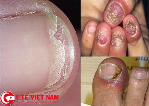 Hình ảnh bệnh nấm móng tay