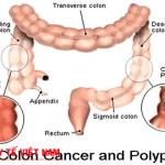 Hình ảnh bệnh ung thư ruột