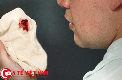 Ho ra máu triệu chứng nhận diện bệnh ung thư thực quản