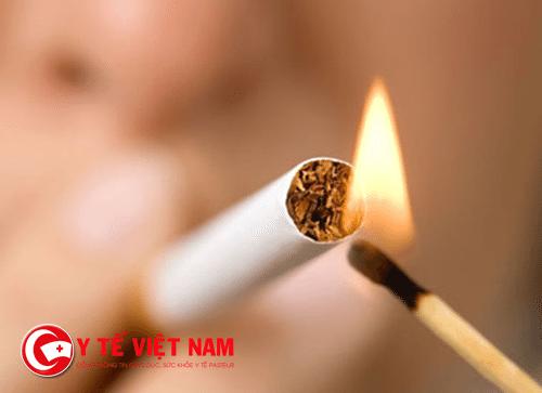 Thuốc lá được coi là nguyên nhân gây bệnh Buerger
