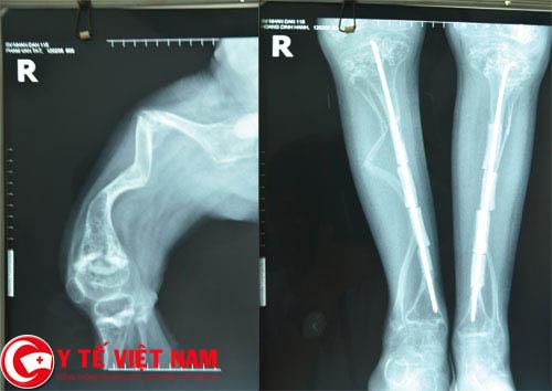 Bệnh xương thủy tinh là gì?