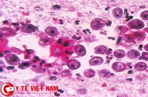 Mắc bệnh viêm gan do nhiễm ký sinh trùng