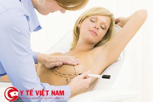 Phương pháp nâng ngực nội soi qua đường vú