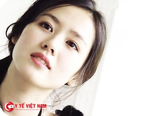 Xu hướng cắt mí mắt tại Hàn Quốc