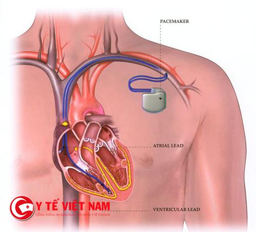 Máy tạo nhịp tim mini sẽ thay thế máy truyền thống