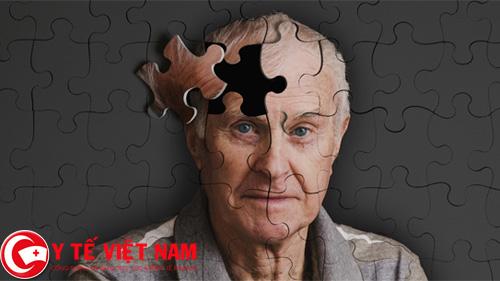 Nguyên nhân gây ra bệnh Alzheimer