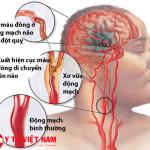 Những nguyên nhân gây bệnh đột quỵ não