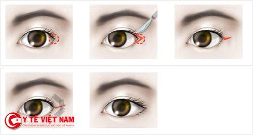 Nhu cầu mở rộng góc mắt của phái đẹp ngày càng tăng