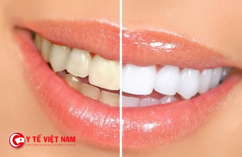Tại sao răng lại có màu trắng đục