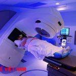 Phương pháp xạ trị điều trị bệnh ung thư bàng quang