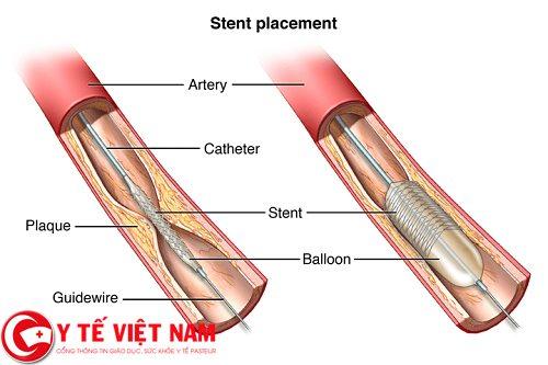 Phương pháp đặt stent, nong động mạch vành