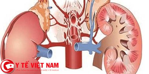 Tăng huyết áp nguy cơ gây bệnh suy thận
