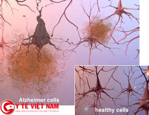 Nguyên nhân nào gây ra bệnh Alzheimer