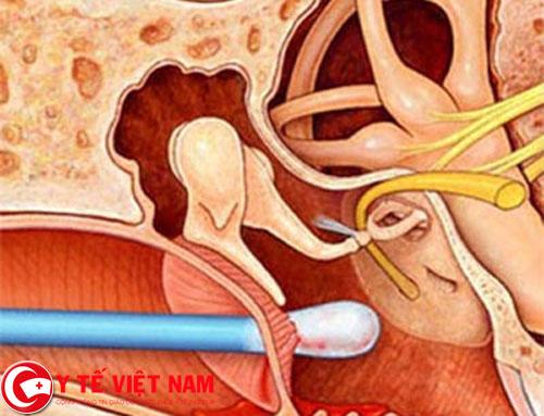 Thủng màng nhĩ có thể gây nên hậu quả khôn lường