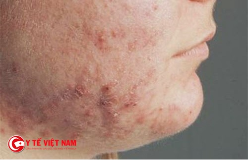 Bệnh viêm da dị ứng cơ địa ở mặt thường khiến bệnh nhân tự ti và mặc cảm
