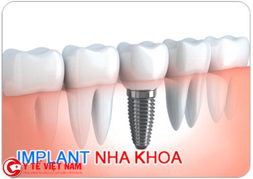 Kỹ thuật cấy ghép răng Implant đã mang lại thay đổi cho nhiều người