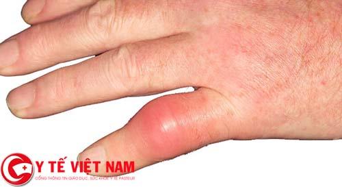 Chữa bệnh gút bằng lá trầu và nước dừa hiệu quả sau 7 ngày