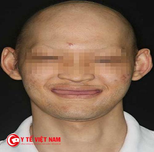 Bạn L mắc một chứng bệnh hiếm gặp trên thế giới nên không có răng