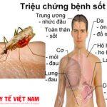 Triệu chứng của bệnh sốt rét