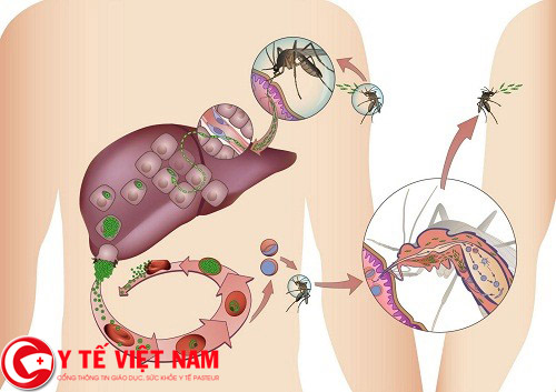 Thuốc chữa bệnh sốt rét hiệu quả nhất