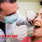 Quy trình bọc răng sứ mất bao lâu?