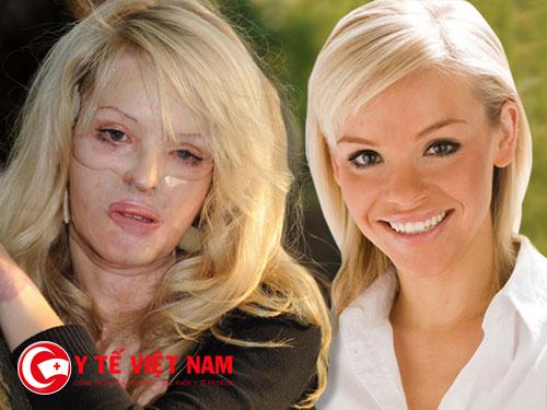 Khuôn mặt bị tàn phá do bỏng axit