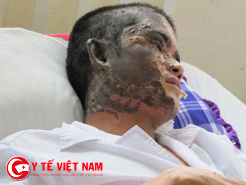 Bỏng mặt rất nguy hiểm