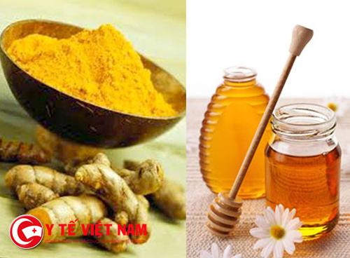 Nghệ tươi và mật ong là phương pháp trị sẹo hiệu quả