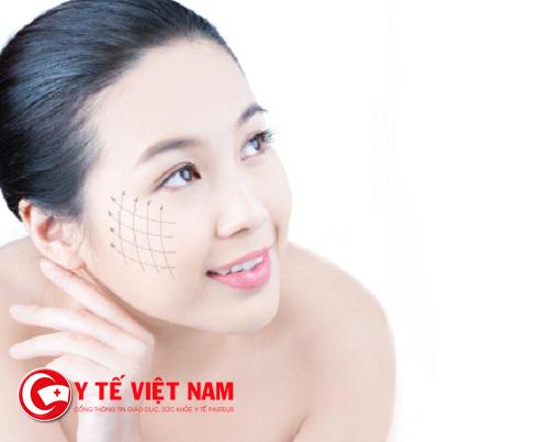 Căng da mặt tối thiểu để tạo hình khuôn mặt trẻ trung nhất