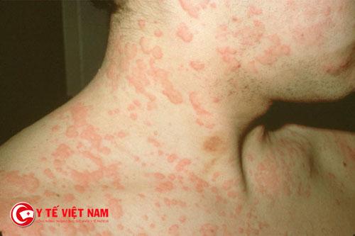 Dị ứng thuốc kháng sinh là một trong những nguy hiểm với người bệnh