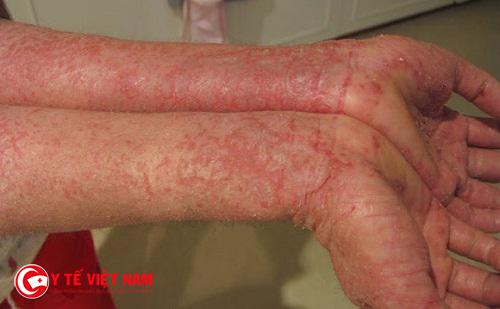 Bệnh viêm da dị ứng cơ địa ở tay là tình trạng khá phổ biến